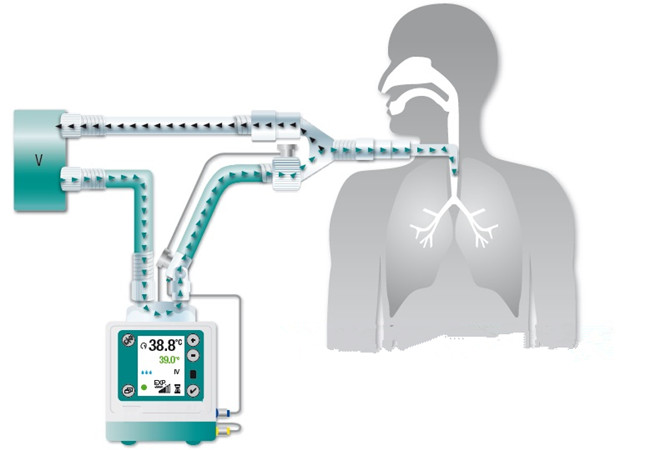 湿化器在气道湿化治疗中的应用