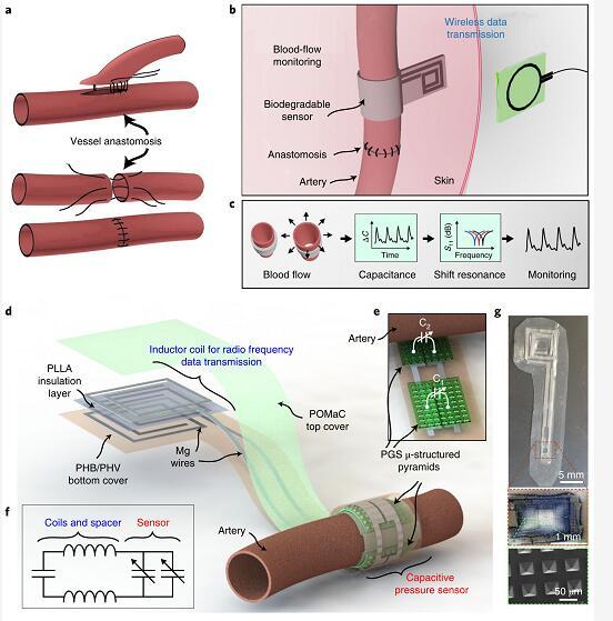 可无线监测的生物可降解柔性动脉血流传感器