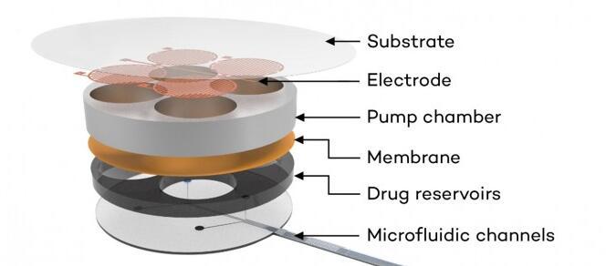 科学家研发内置传感器的的植入物 可检测阿片类药物过量