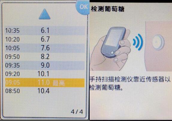 国内医院用贴片式传感器让患者实时监测自身血糖