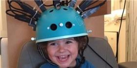 自行车头盔穿戴式脑扫描系统可进行儿童脑发育研究