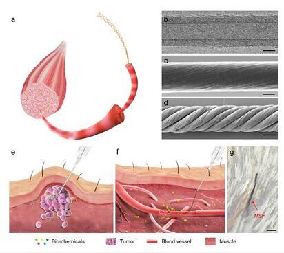 复旦研发仿生柔性传感器 可实时长期监测人体健康
