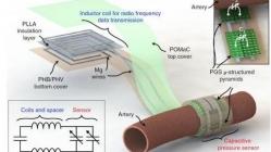 斯坦福大学研发出使用后无需摘除的血流传感器